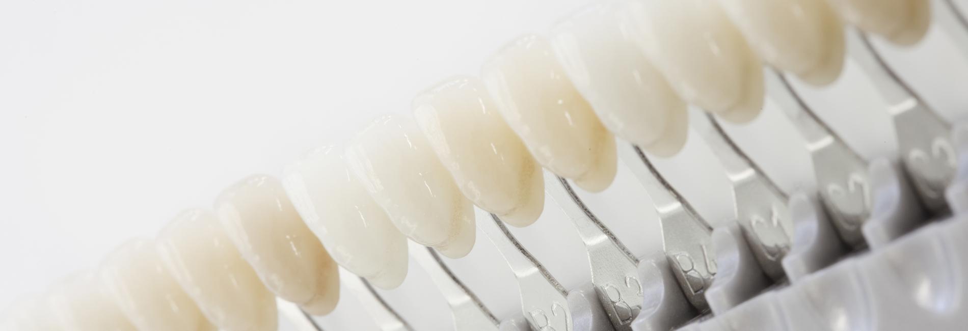 Zahnarzt-Tornesch-Aesthetik-Still