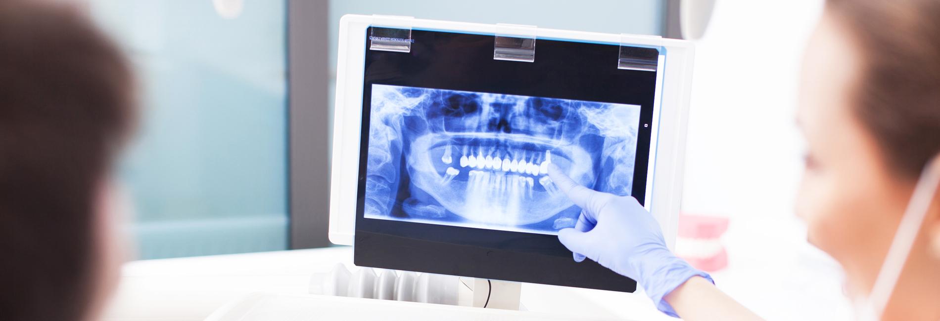 Zahnarzt-Tornesch-Implantologie-Header