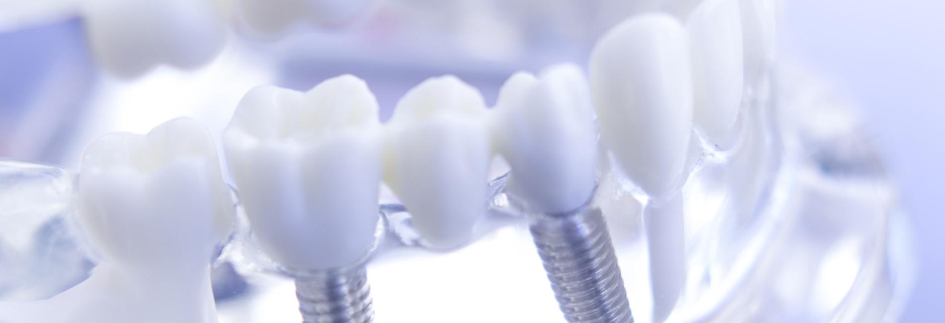 Zahnarzt-Tornesch-Implantologie-Still